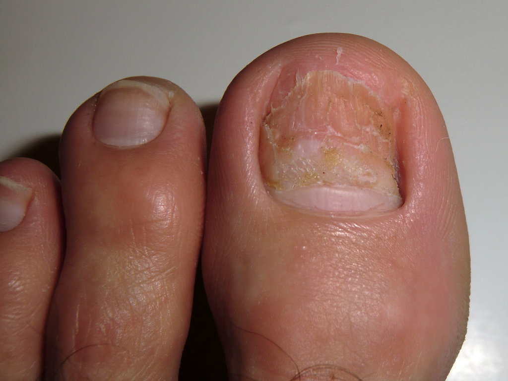Ingrown Toenail Causes and Treatments | Boulder County Foot & Ankle