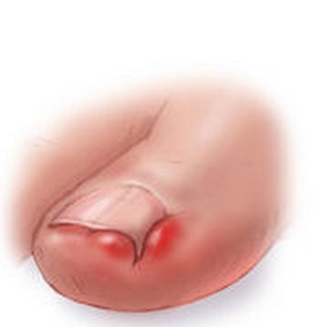 ingrown-toe-nail